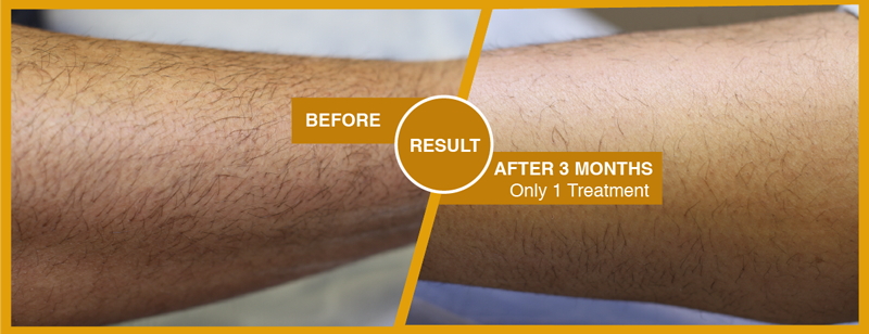 Before-and-after-arms-laser-hair-removal